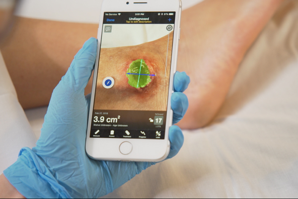 Swift Skin and Wound, a wound care management software created by Swift Medical, helps health care providers quickly and accurately track the progression of chronic wounds and the effectiveness of their treatment. (Courtesy: Swift Medical)