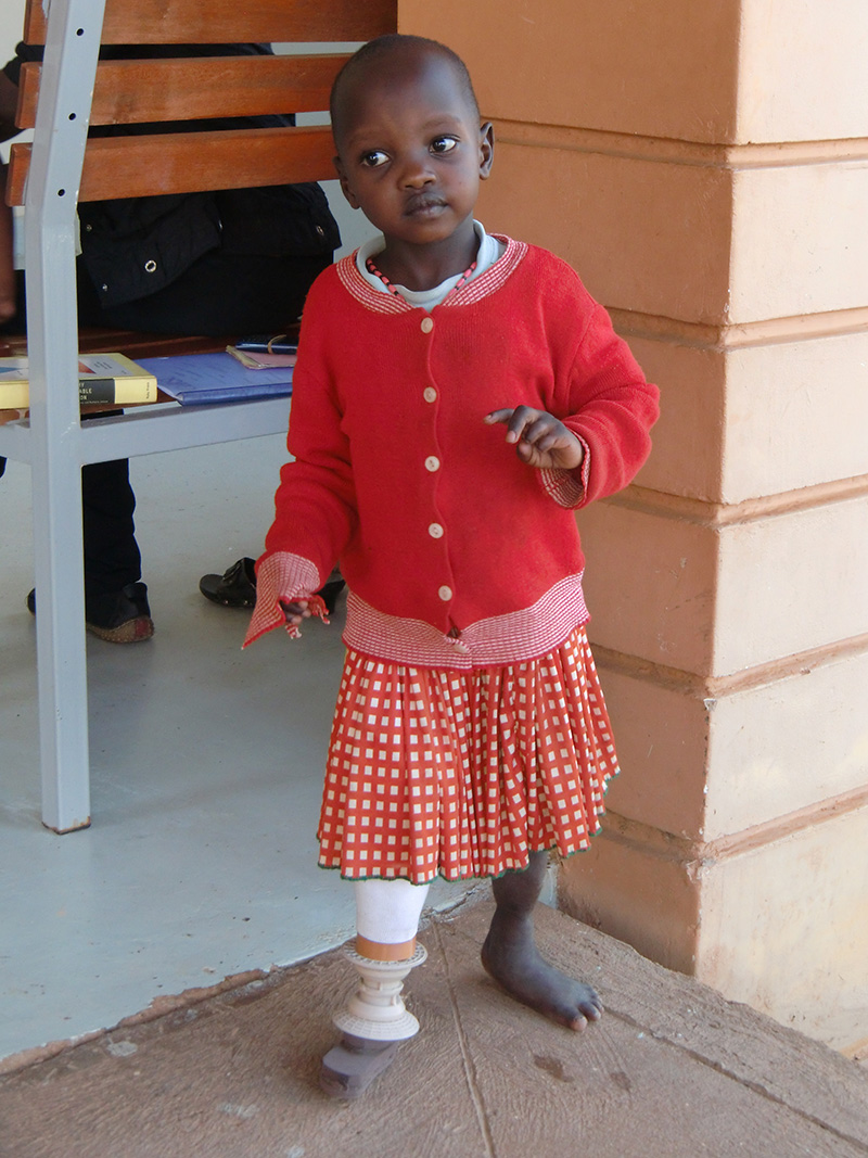 Roseline, the first patient to receive a custom 3D printed prosthetic from Nia Technologies. (Photo: Nia Technologies)