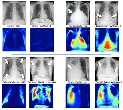 On the left of each quadrant is a real X-ray image of a patient's chest and beside it, the syntheisized X-ray formulated by the DCGAN. Under the X-ray images are corresponding heatmaps, which is how the machine learning system sees the images (Image courtesy of: Hojjat Salehinejad/MIMLab).